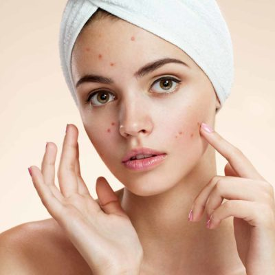 Homemade Beauty Products: Pimples And Acne Treatment