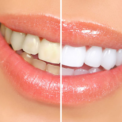 5 Natural Teeth Whitening Solutions For Home Use